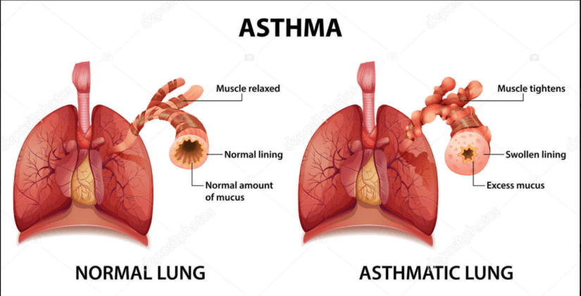 How to take care of an Asthmatic baby?